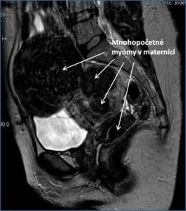 Ultrazvuková snímka myómov