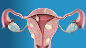 Myómy na maternici